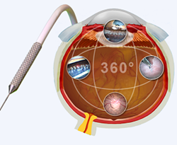 Ophthalmic Laser Microendoscopy